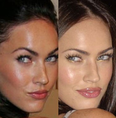 How To Repair Chapped Lips   Dermal Fillers Cost